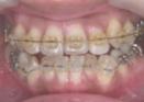 上顎・下顎に透明ブラケットワイヤーが入った状態の木馬歯科の矯正写真