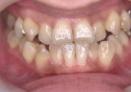 木馬歯科での矯正前の口腔内写真