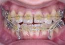 ゴムをかけて歯並びの移動を補助している矯正の口腔内写真です